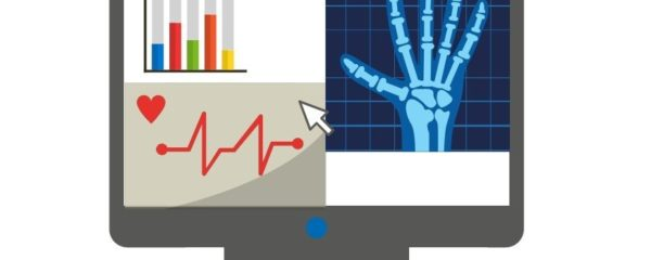 Monitor showing an ECG heartbeat line, a x-ray image of a hand and a graph, symbolizing medical stand alone software or Software as Medical Device (SaMD).
